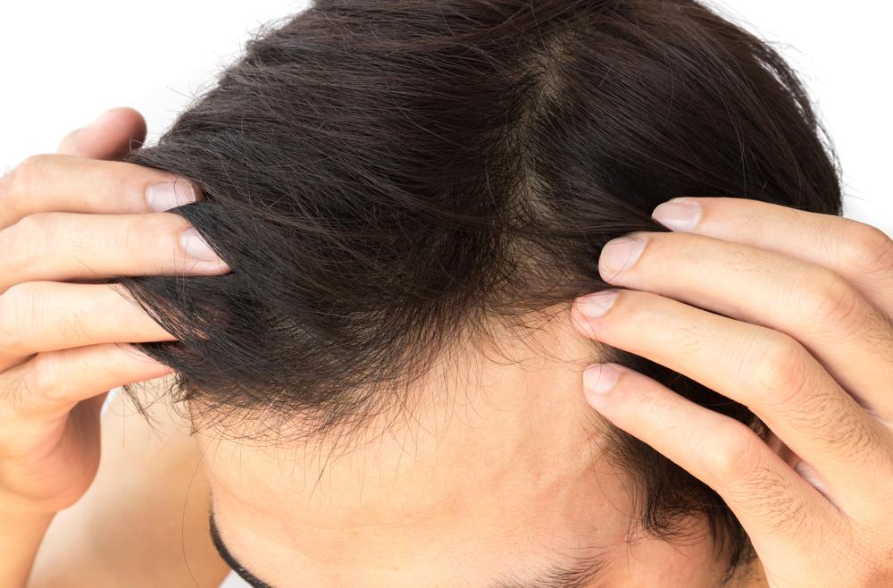trapianto capelli costi